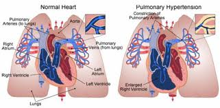 Google updates on Pulmonary arterial hypertension